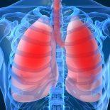 Epigenetiske endringer påvirker genuttrykket av proinflammatoriske cytokiner i ikke-småcellet lungekreft